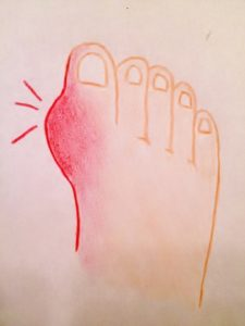 Gout in toe, gout diet