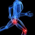 Osteoarthritis- The most common type of arthritis